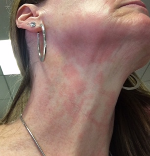Neck and face red rash that does not itch.