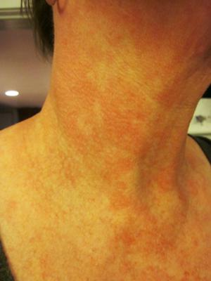 hot red skin rash on neck