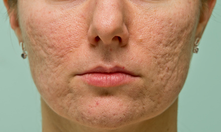 acne scars on cheeks of woman's face