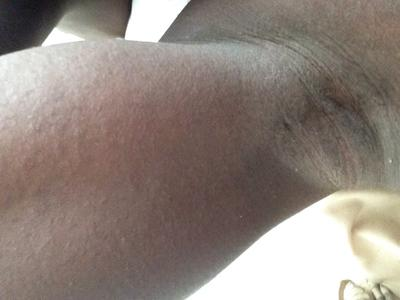 tiny itchy bumps under arm