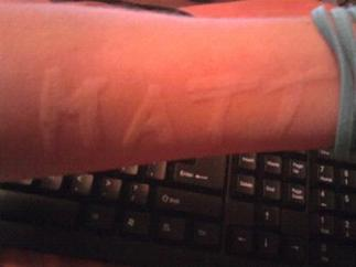 dermatographism sufferer writes name on arm and this is why it is called the skin writing disease