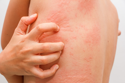 itchy hives or welts or rash on body caused by a food allergy rash