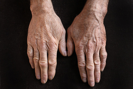 Aging hands with wrinkles on skin.