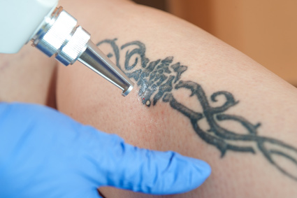 laser tattoo removal technique for fading tattoos