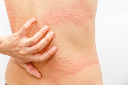 urticaria or itchy skin hives on the back or torso.