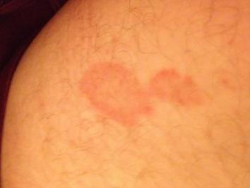 Red skin blotch on inside of thigh