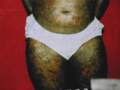 black sore body rash