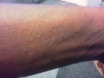 skin rash like a scratch on the skin