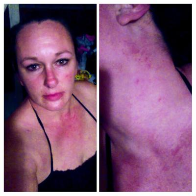 red lacy vein rash on check and face
