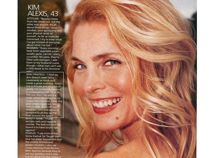 Kim Alexis and the non surgical face lift