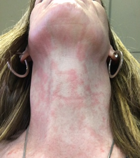 Red non-itchy rash on neck.