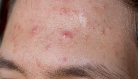 acne pimple skin care problem on forehead