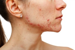 bad acne on a woman's face and chin