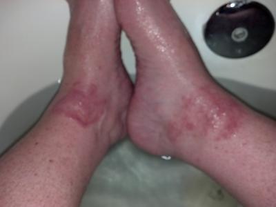 Red skin rash on both ankles
