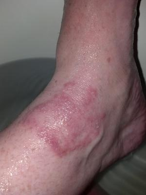 Blistering red skin rash on right ankle