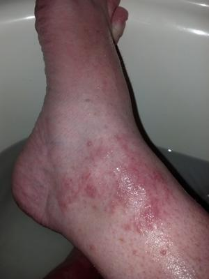 Blistering red skin rash on left ankle