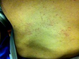 blotchy welt rash on stomach