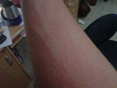 swollen sweat rash on arm