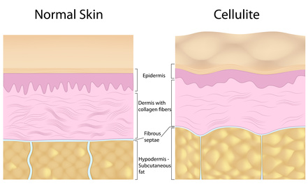 schematic diagram of normal skin layers and skin layer with the cellulite skin problem