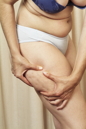 cellulite skin problem on the thigh of a women's leg