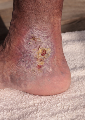 cellulitis infection or staph infection on leg