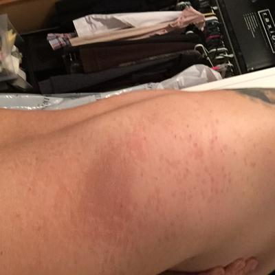 unknown spreading circular rash on leg