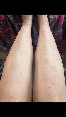 Circular or crescent shaped rash on legs.