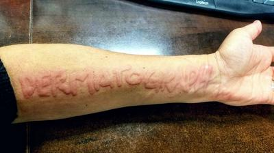 Dermatographism skin writing disease on forearm possibly linked to heartburn, allergies, and fatigue.