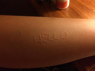 Skin writing disease on my arm with raised skin welts.