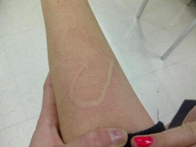 dermatographism skin welt problem on leg