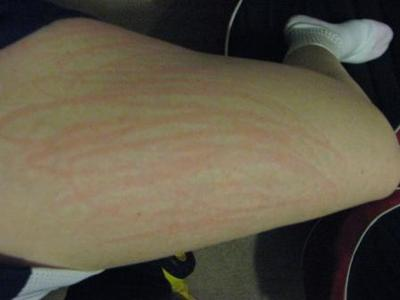 image of dermatographism on the leg with no raised skin and only red marks