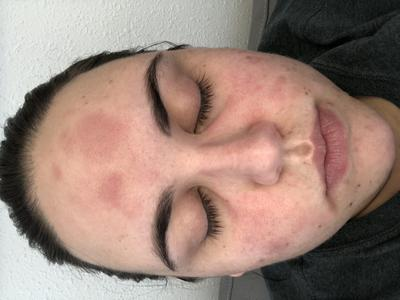 Woman's face with red hives or rash