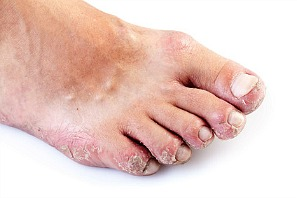 foot rash on toes caused by a variety of factors
