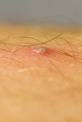 pimple caused by an ingrown hair