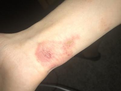 Itchy red rash on wrist.