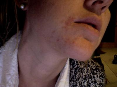 Lamictal Rash on Face