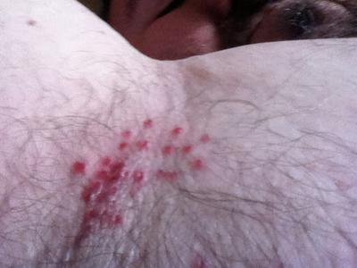 Angry looking pimple like rash under right armpit only.