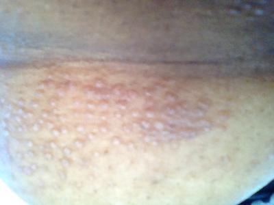 Hair Follicle Pimple Rash