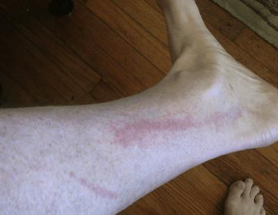 mystery rash on leg and ankle skin area