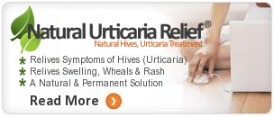 natural relief for urticaria or skin hives