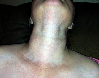 A neck rash that is spreading to the chin.