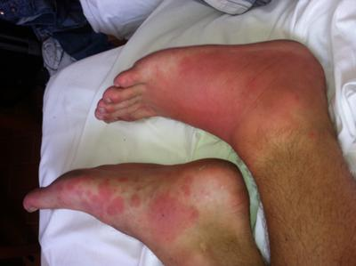 Unknown red skin rash on foot (bottom foot) and swollen red foot caused by a bug bite (top foot).