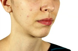 acne pimples on a woman's face