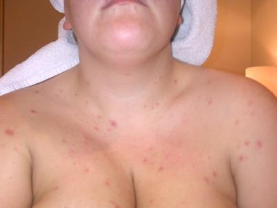 Pox like Spots Skin Rash on Chest