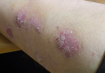 flaky and red psoriasis skin problem on arm