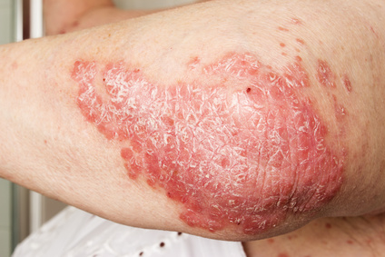 red and flaky psoriasis on elbow or arm requires a psoriasis treatment
