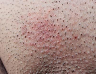 pubic area rash