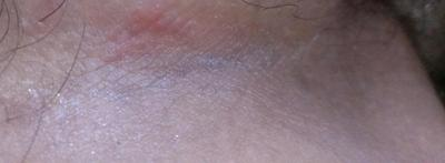 pink stinging rash in groin area