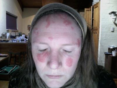 Raised Red Lesions on Face
