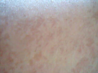 red and blotchy non itching skin rash